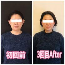 【宇治市からご来店】むくみが改善してお顔スッキリ♪の記事に添付されている画像
