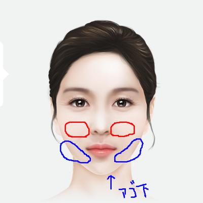 顔とボディの脂肪吸引の違い??の記事に添付されている画像