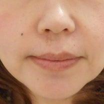 脂肪溶解注射で部分痩せ♡BNLSネオ注射(頬)施術6回終了後のお写真の記事に添付されている画像