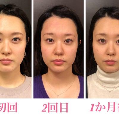 小顔整体お客様ビフォーアフター・3週間後の変化!の記事に添付されている画像