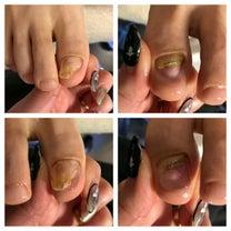 爪のリペアの記事に添付されている画像
