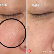 【お客様の声】頬の毛穴がほとんど目立たなくなって嬉しい。の記事に添付されている画像