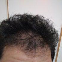 薄毛治療再開!の記事に添付されている画像