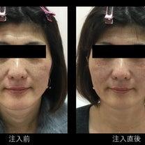 40代女性の注入症例#2の記事に添付されている画像
