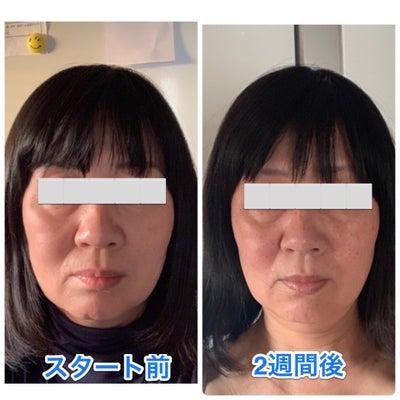 遠隔での小顔矯正の募集開始します!の記事に添付されている画像