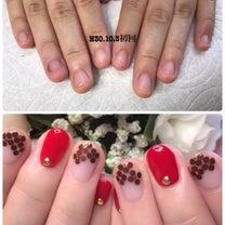 【深爪矯正】深爪の後はオシャレ爪への記事に添付されている画像