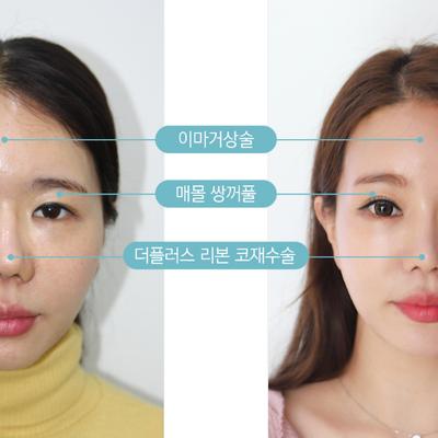 ザ・プラス美容外科 リアルモデル★イム・ジョンユンさんの記事に添付されている画像