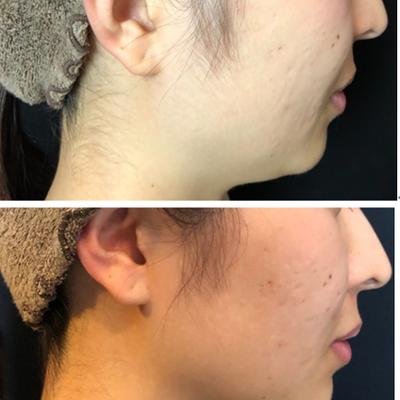 顎下の脂肪を1回の治療で無くすには?の記事に添付されている画像