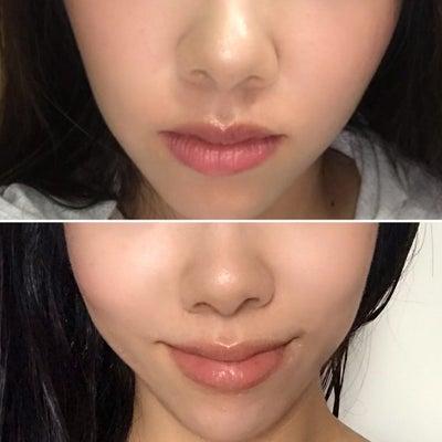 唇は育てられる!縦じわ皆無のボリューミーリップ♡の記事に添付されている画像