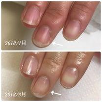 爪、まっすぐ伸びてますか?の記事に添付されている画像