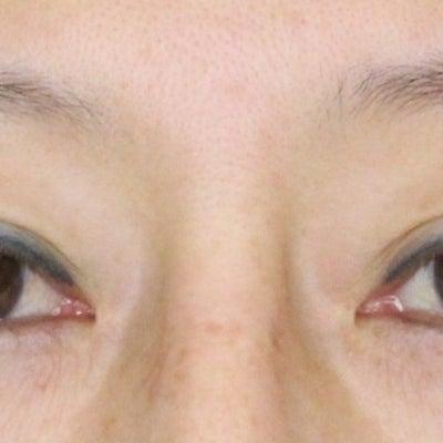眼瞼下垂症手術 1ヶ月の経過の記事に添付されている画像