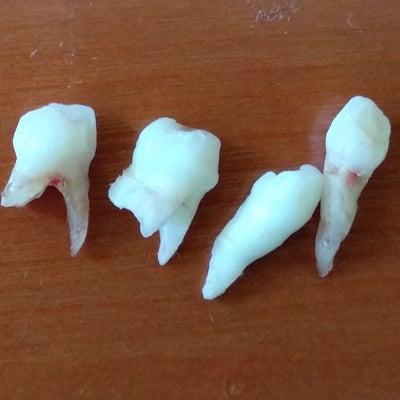 歯医者:値段って勝手に付けている!?の記事に添付されている画像