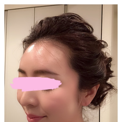 最近、私のお肌の状態★☆★ ダイヤモンド注射の効果が持続中!の記事に添付されている画像