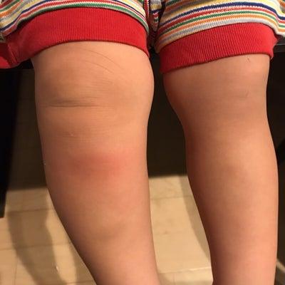 腫れ上がった息子の足の記事に添付されている画像