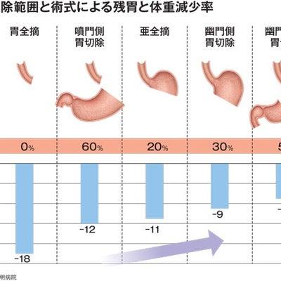 餃子の胃の記事に添付されている画像