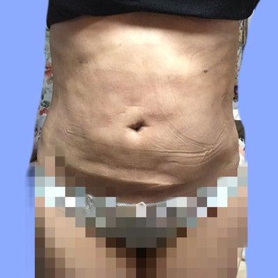 脂肪吸引14日目&15日目のお腹の記事に添付されている画像