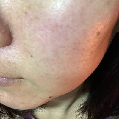 夕方16時ごろのお肌の様子の記事に添付されている画像