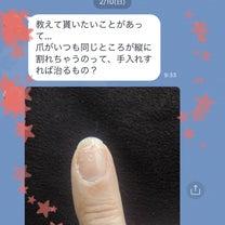 長年の悩み…改善できますように❤︎【京都 東山区 ネイルケア専門 ネイルサロン】の記事に添付されている画像