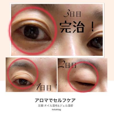 【花粉症】セルフアロマケア結果の記事に添付されている画像
