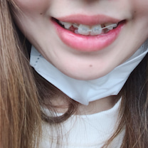 歯列矯正記録  装着の記事に添付されている画像