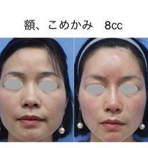 Dr.ビョンの技術の素晴らしさ ★☆★ ヒアルロン酸注射の記事に添付されている画像
