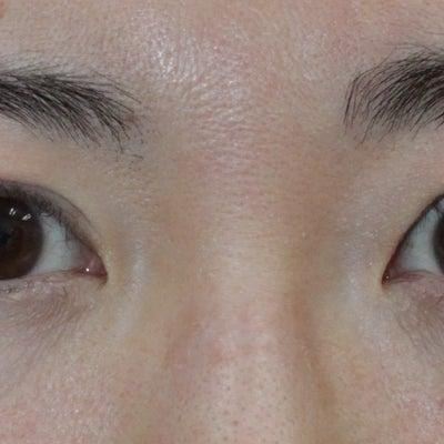 眼瞼下垂の過矯正の修正 手術後2か月の記事に添付されている画像