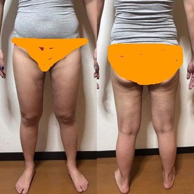 脂肪吸引 15日目の記事に添付されている画像