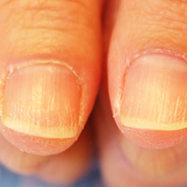 爪が弱い・割れやすい方の改善方法の記事に添付されている画像