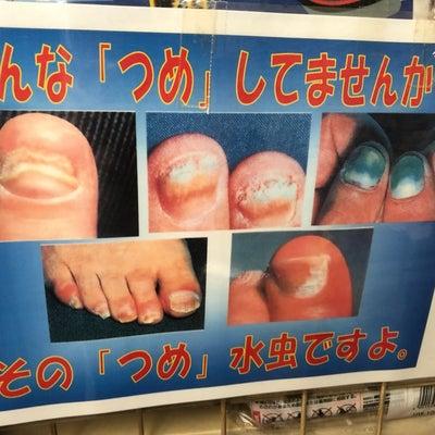 こんな【つめ】してませんか?銭湯や温泉場の体重計や足つぼマットは危険よ!爪水虫さの記事に添付されている画像