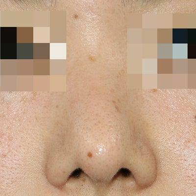 鼻中隔延長のやりすぎ修正手術の記事に添付されている画像