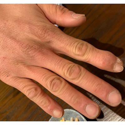 2番目に酷い爪!の記事に添付されている画像