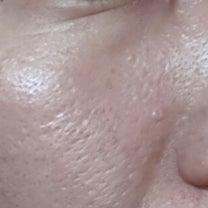 毛穴&敏感肌対策!アヤナスとワイエスラボ101日目の毛穴!の記事に添付されている画像