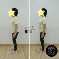 変形性股関節症のKさんの姿勢の変化の記事に添付されている画像