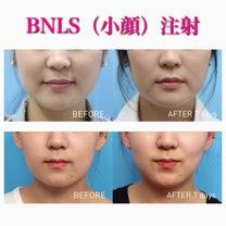 切らない痩身!BNLS注射の記事に添付されている画像