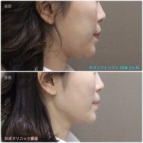 SUEクニック銀座♡TESS LIFT SOFT2カ月経過♡の記事に添付されている画像