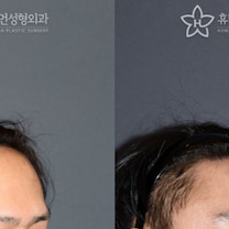 額縮小術で若く見える!?!?の記事に添付されている画像