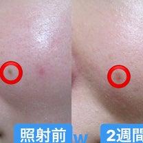 ホクロ除去はCO2レーザーにお任せ♡〜大阪・心斎橋・WCLINIC〜の記事に添付されている画像