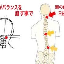 急に起こる偏頭痛の原因は‼️の記事に添付されている画像