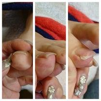 巻き爪補正の記事に添付されている画像