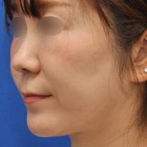 お顔引き締めヒアルロン酸+ボトックス注射2週間後モニター様の記事に添付されている画像