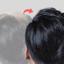 F5整形外科の毛髪移植をご紹介します!の記事に添付されている画像