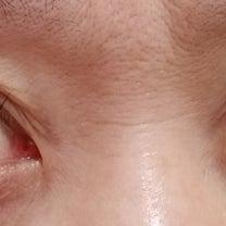 マツエク アレルギー 回避できたの記事に添付されている画像