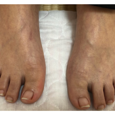 靴の外側だけが減っていく足の爪の記事に添付されている画像