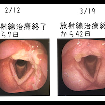 放射線治療終了から42日の記事に添付されている画像