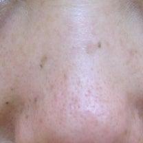 目の下PRP治療3カ月後の記事に添付されている画像