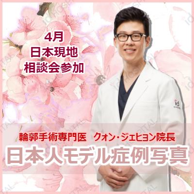 4月相談会参加 ☆クォン・ジェヒョン院長☆日本人症例写真のご紹介!の記事に添付されている画像
