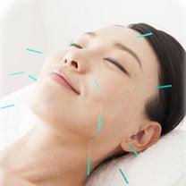 ★ 美容鍼お休みです ☆の記事に添付されている画像