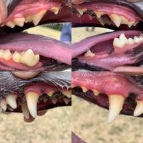 歯のメンテナンスの記事に添付されている画像