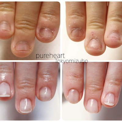 深爪緩和コースで深爪、噛み爪、小さな爪も3ヶ月で見違えるほどキレイに!の記事に添付されている画像