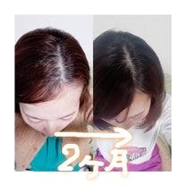 【毛髪診断士筆】育毛サプリの使用前後写真の記事に添付されている画像